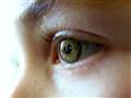 my sons eye